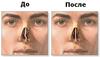 Исправление искривления носовой перегородки