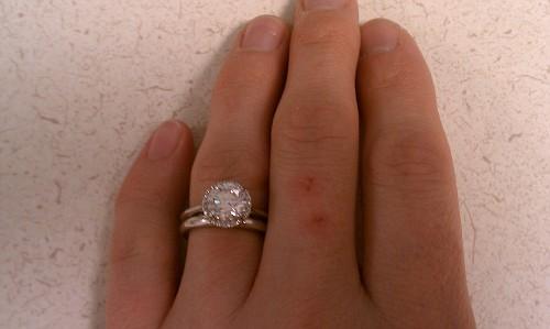 Почему царапается обручальное кольцо