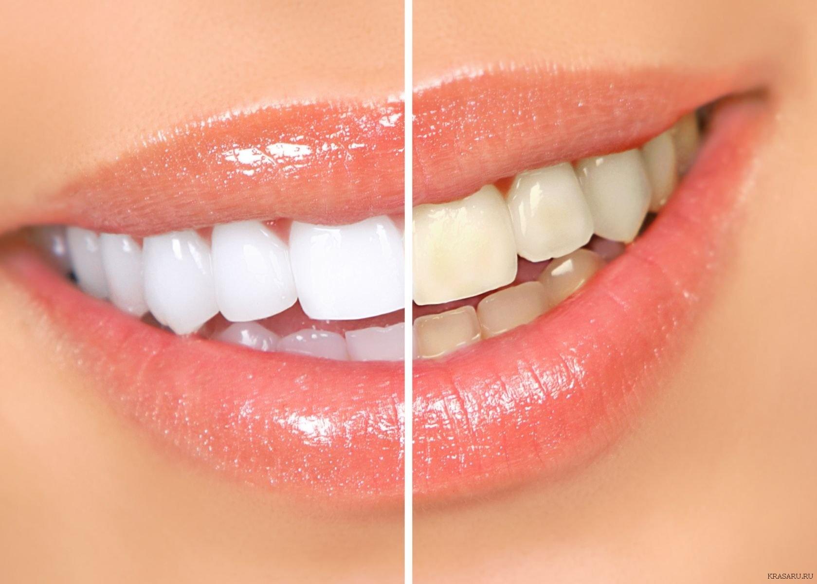 Почистить зубки не даёт 30 фотография